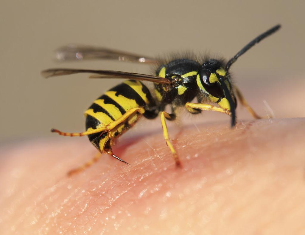 Bị ong vò vẽ đốt